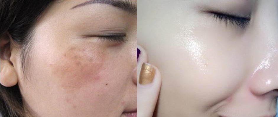 hình ảnh trước và sau khi sử dụng dịch vụ Spa